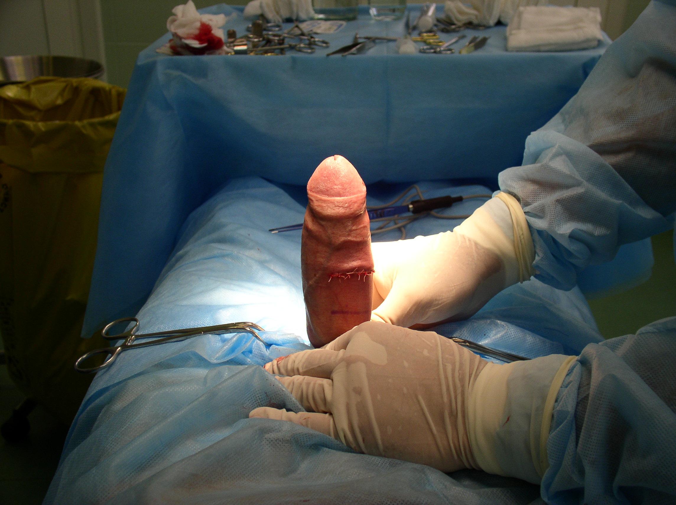Продольное разрезание пениса, Жесть широко раскрытая головка пениса Блог о письке 18 фотография