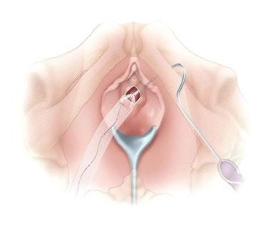 seks-posle-transpozitsii-uretri